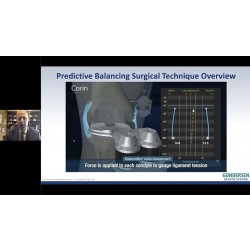 Jeffrey Lawrence MD Challenging tradition with OMNIBotics to optimize stability in TKA
